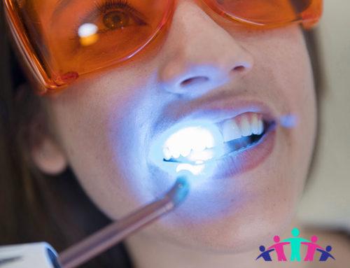 Come ottenere denti più bianchi?
